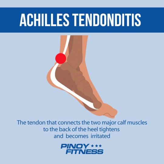 achilles tendonditis 2